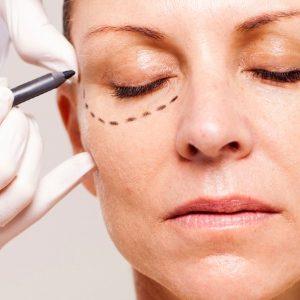 mulher-sendo-preparada-para-cirurgia-plastica-nas-palpebras-1384467200554_615x300